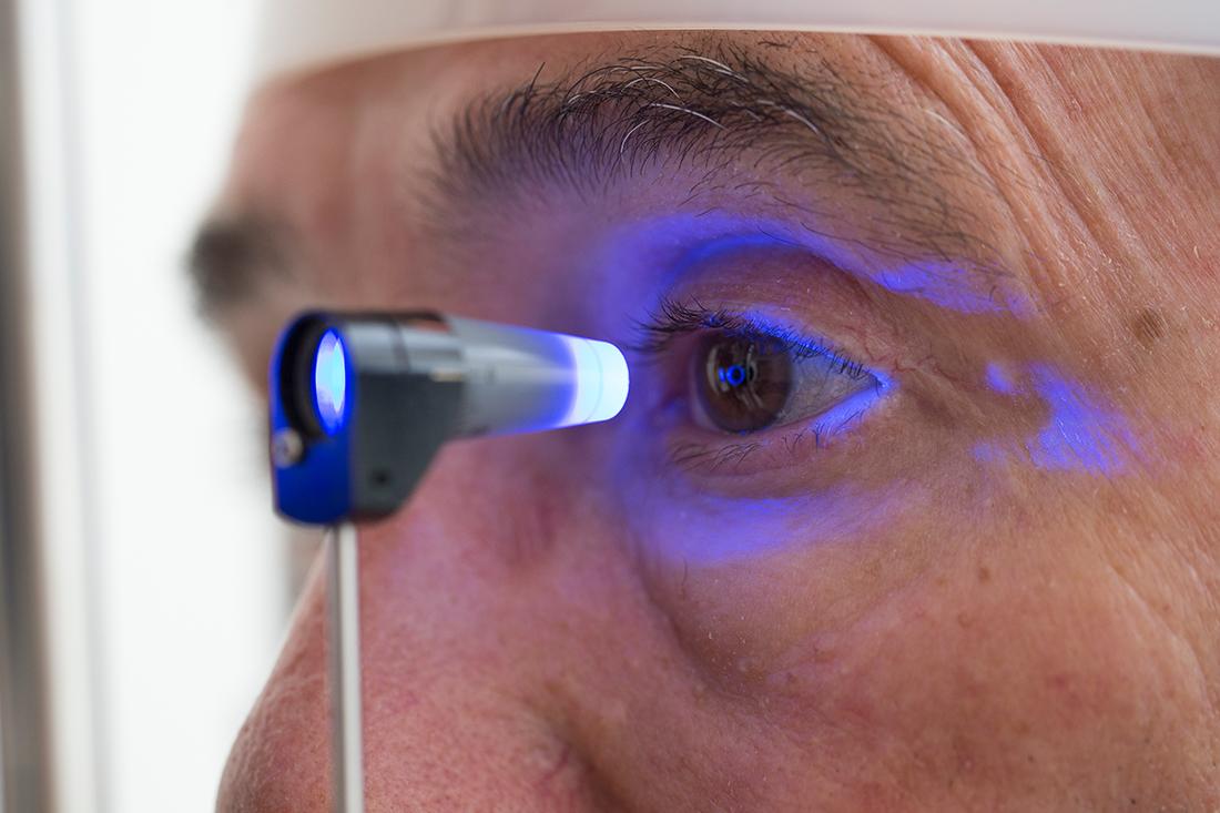 Mutirão previne glaucoma e catarata neste sábado, em Boa Vista do Tupim